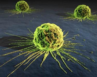 Rakovina, druhy rakoviny, zhubné nádory