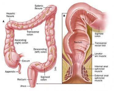 Rakovina konečníka
