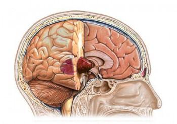 Rakovina mozgu