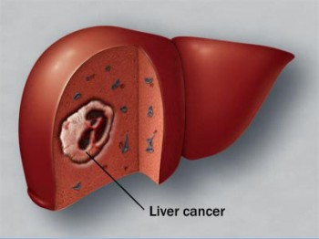 Rakovina pečene
