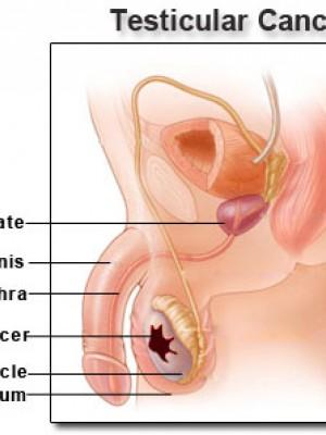 Rakovina semenníkov
