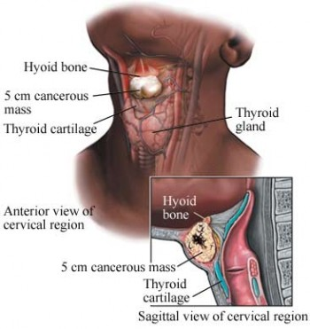 Rakovina štítnej žľazy